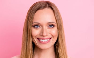 Are Dental Veneers Worth It? 4 Things You Need To Know